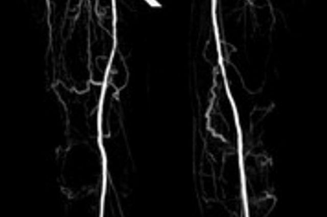 MR-Angiographie der abdominellen Aorta und der Beinarterien mit Nachweis einer Stenose (Pfeil) im Verlauf der Arteria femoralis superficialis rechts.