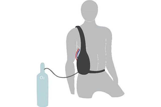 Abb. 1 – Vision für ein tragbares Lungenunterstützungssystem zur Behandlung der COPD